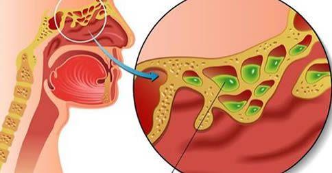 metodo congestione nasale