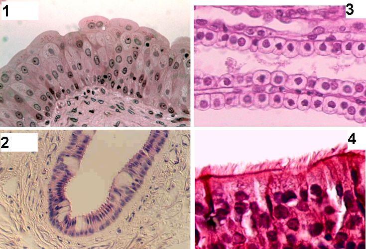 9 best epithelial tissue images on Pinterest | Nursing board ...