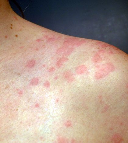 At Home Allergic Reaction Hives Treatment Options – eHealthy Blog – Complete Health Information, Tips, NewsReba Sherwood
