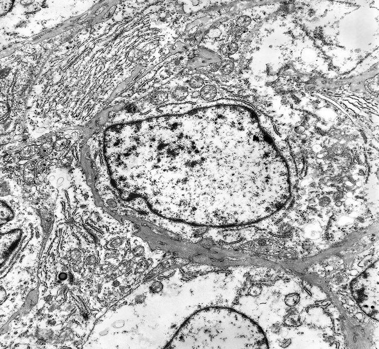 celulas observadas pelo microscópio eletronico - Pesquisa Google