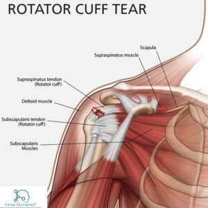 Rotator Cuff Tear! Symptoms, Causes, Diagnosis, Treatment & Exercises