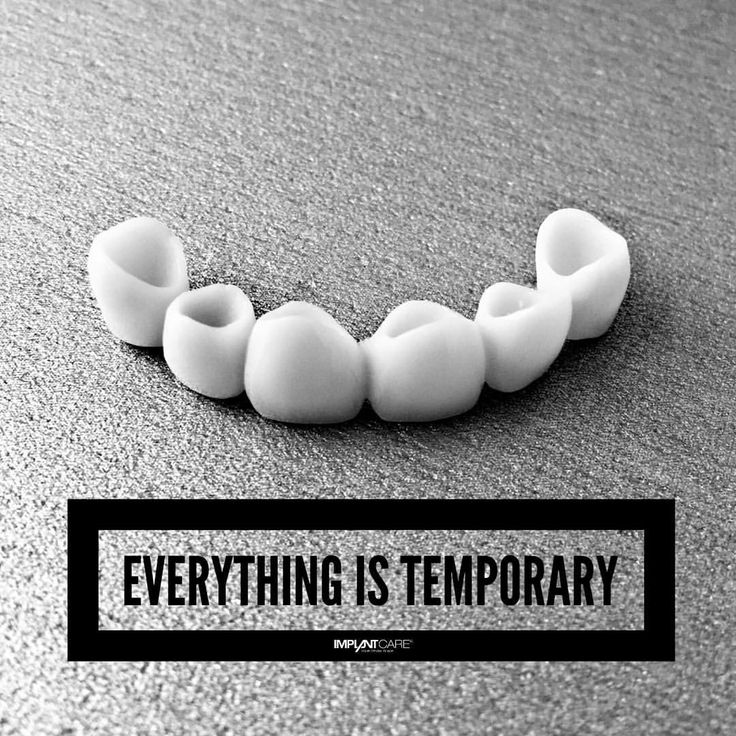 #implantcare #slovakia #yourdentalplace #quotes #lifequotes #everything #is #temporary #dental #brigde #beautiful #amazing #dentalphotography #picoftheday #love #smile #live #instamood #instagood...