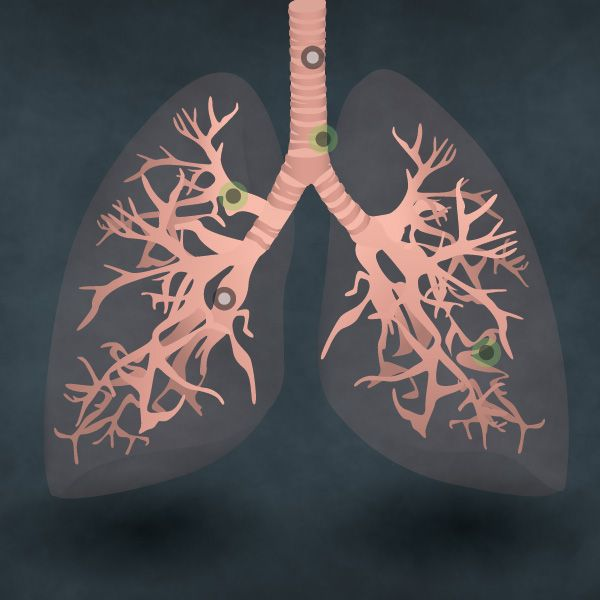 Do you know the difference between a healthy lung and a smoker's lung? Follow the passage of air with this new interactive guide from Health-on-Line