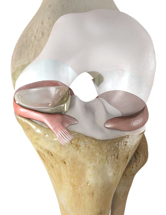 A new knee implant may soon transform the way many Americans live. The NUsurface Meniscus Implant, a replacement for the knee joint's cartilage pad between the thigh and shin bones, has gone into a…
