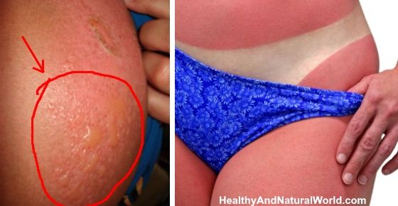 How to Get Rid of Sunburn and Sunburn Blisters: Top Home Remedies
