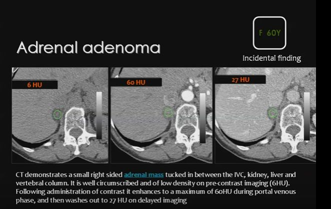 Phillip Cheng, MD MS - Adrenal CT Washout Calculator