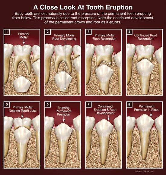 Dentaltown - A close look at tooth eruption. Baby teeth are lost naturally due to pressure of the permanent teeth erupting from below. This process is called root resorption. Note the continued development of the permanent crown and root as it erupts.