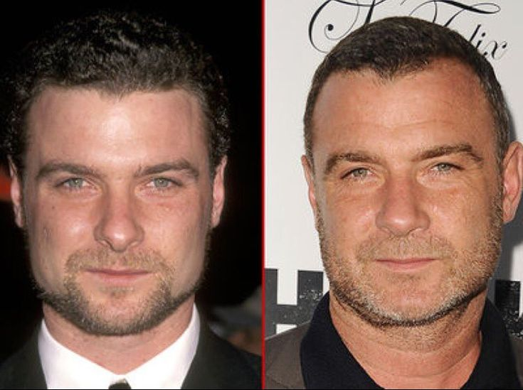 Good Genes or Good Docs?! The spotlight is on Liev Schreiber's good looks! 🔥  Here's a 30-year-old version of the smirking stud back in 1998 (left) and 19 years later in Hollywood last week (right). A perfect man.  #lievschreiber #tmz #goodgenes #goodgenesorgooddocs