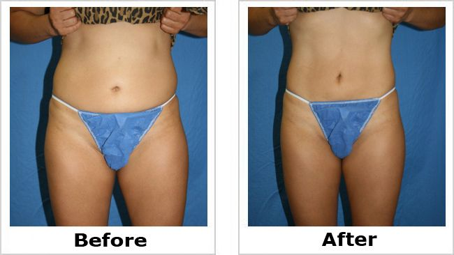 Liposuction Before and After Photos: Thighs