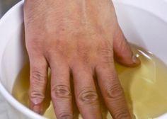 Remédio milagroso para curar artrite e dor nas articulações   Cura pela Natureza