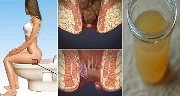 Guérissez vos hémorroïdes en 24 heures avec un seul ingrédient de votre cuisine !  lire la suite / http://www.sport-nutrition2015.blogspot.com