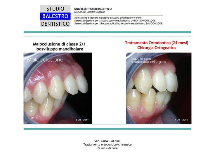 Casi clinici ortodontici Chirurgia ortognatica - Classe 2/1 http://www.studiodentisticobalestro.com/2014/08/malocclusione-di-classe-21.html