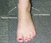 Ankle Sprain Grades, Treatment & Recovery Time #most #frequent #causes #of #burn #injuries http://anchorage.remmont.com/ankle-sprain-grades-treatment-recovery-time-most-frequent-causes-of-burn-injuries/  # Ankle Sprain Overview Sprained ankles are the most frequent type of musculoskeletal injury seen by primary-care providers. Ankle sprains are common sports injuries but also happen during everyday activities. An unnatural twisting motion of the ankle joint can happen when the foot is…