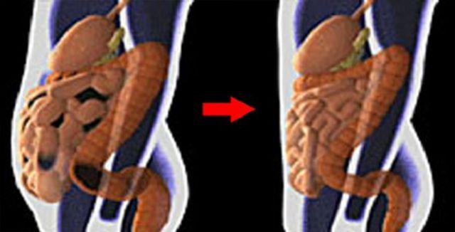 Si quieres estar mucho tiempo sin enfermedades, debes de cuidar totalmente tu cuerpo, incluso tu sistema digestivo e intestinal.Esta es una parte clave en nuestra salud: la limpieza de los intestinos de toxinas, parásitos y depósitos fecales que se puedan acumular en la zona. Anuncios Según los últimos estudios, durante toda nuestra vida, los intestinos …