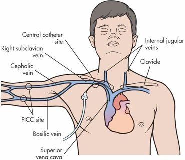 Picc- basilic vein; central line-subclavian vein; right subclavian vein- thread in wire for electronic pacemaker device