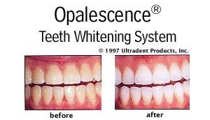 Opalescence Teeth Whitening Before and After Wow .. its amazing what you can find while searching out images for cosmetic dentistry and more