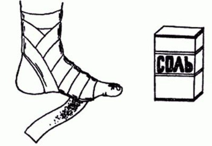 Этот рецепт был опубликован в ЗОЖ в 2002 г. К сожалению, не хорошо забыт, а специально вытравлен из памяти и дискредитирован фармацевтическими компаниями в погоне за наживой. Почти также работает английская соль (магнезия) в компрессах, иногда при мастопатиях, ушибах. Ещё солевые ванны, промывание носа, протирание солевым раствором лица от морщин, промывание пазух носа... Это всё проверено и работает! Данный рассказ был найден в старой газете. Речь в нём идёт об удивительных целительных…