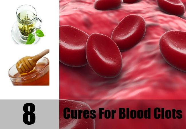 14 Best Images About Blood Clots To Miscarriage On Pinterest
