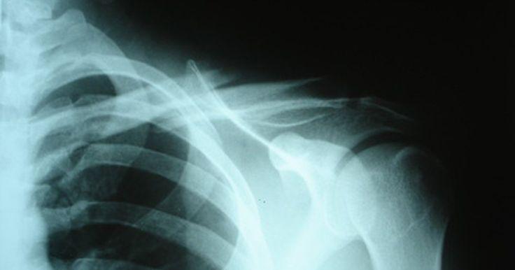 Cómo curar una clavícula rota. Tener una clavícula rota es una experiencia dolorosa pero la recuperación es muy sencilla si tienes una fractura simple. Ésta consiste en una sola ruptura en vez de varias distribuídas en distintos puntos o un hueso hecho pedazos. A menudo, la clavícula se rompe cuando caes y usas tus manos para amortiguar el golpe o debido a un fuerte impacto en ...