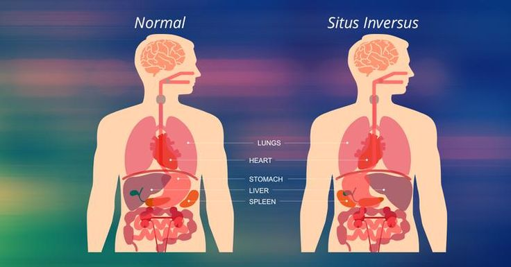 People With Situs Inversus Have Flipped Organs | @curiositydotcom