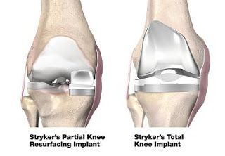 Joint Replacement: Knee Replacement India- Cost, Hospitals,Treatment