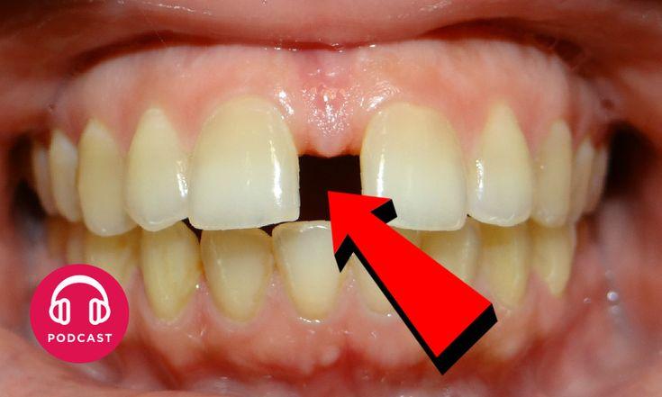 Pourquoi dit-on les « dents du bonheur » ?
