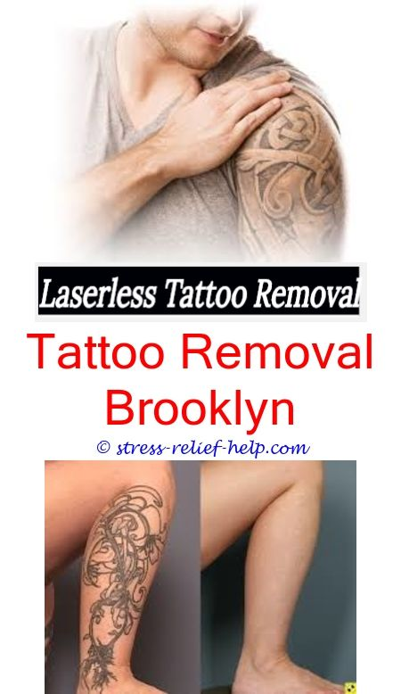 Cosmetic Tattoo Removal | Quotes | Laser tattoo, Laser tattoo ...