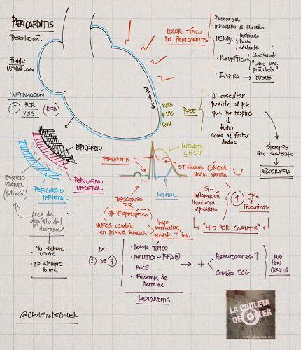 La Chuleta de Osler: Cardiología - Pericarditis, presentación y diagnóstico.