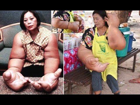 【閲覧注意】手が巨大化してしまったタイの女性