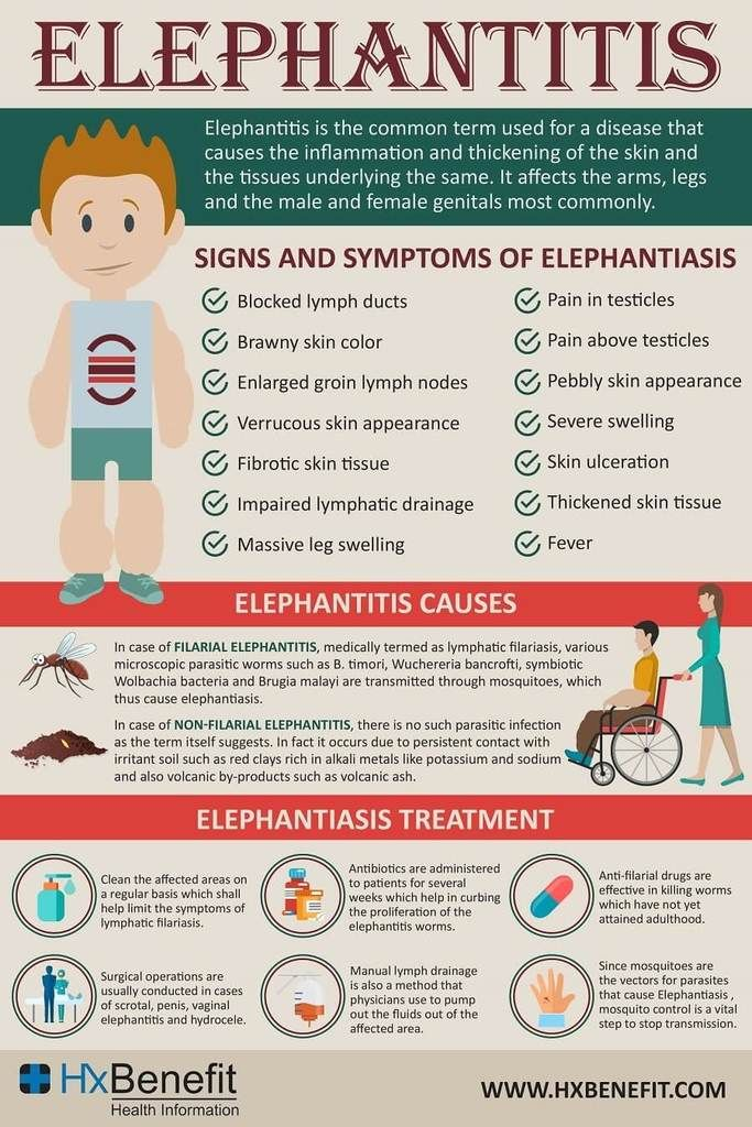 Elephantiasis Caused By A Number Of Parasitic Worms It Is