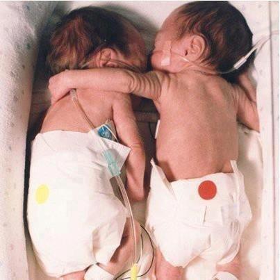 n de eerste week van hun leven zat deze tweeling elk in hun eigen couveuse. Eén van twee zou het hoogstwaarschijnlijk niet overleven. Een verpleegster ging tegen de regels van het ziekenhuis in en legde de tweeling samen in 1 couveuse. Toen ze samen lagen legde het sterke meisje een arm om haar zwakke zusje. De hartslag van het zwakke zusje stabiliseerde en haar temperatuur klom naar een gezonde hoogte.