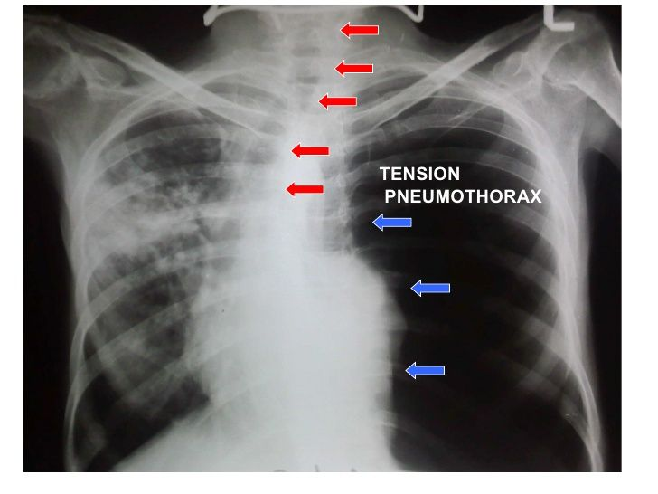 tension pneumothorax tracheal deviation - Google Search ...
