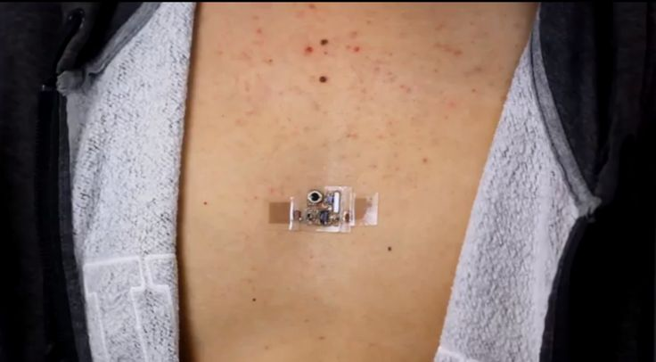 This cosmetics company is ready to cover your body in electronics | Flexible electronic patches are the next big thing to better skin and beyond