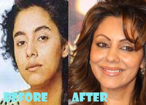 Gauri Khan Plastic Surgery Before and After Pictures