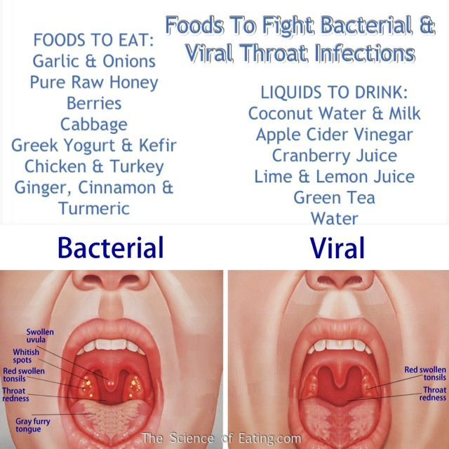 Foods That Fight Viral & Bacterial Throat Infections. Good to know for the Fall & Winter season to come.