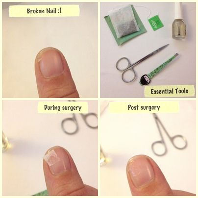 How To Fix A Broken Nail I Heart Sunny Days Nails Brokennail Make Up And Everything In Between 2018 Pinterest