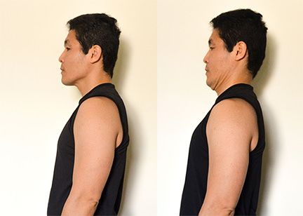 Cervical Disk Herniation - Double Chin Exercies (Dr. Ken Nakamura, Toronto, CA Chiropractor)