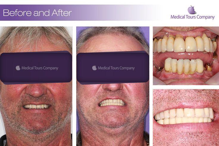 Cazuri before & after #proteza dentara