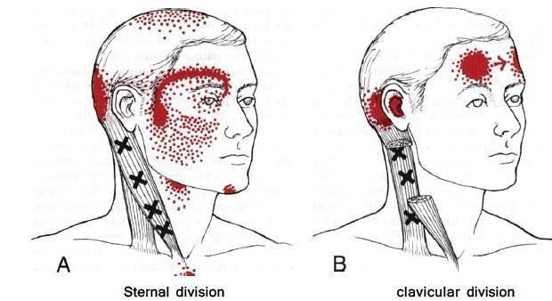 Frontal headaches (#headaches around the forehead and temples) most often originate from trigger points in the sternocleidomastoid #muscle and can be effectively treated by good manual physiotherapy  #physiotherapy #fitness #sport #health #recovery #training #rehab #crossfit #athlete #rehabilitation #fisio #injury #mobility #exercise #physicaltherapy #workout #fitspo #fitfam #fit #fisioterapia #massage #pilates #gym #strength #physiotherapist #sports #performance #run