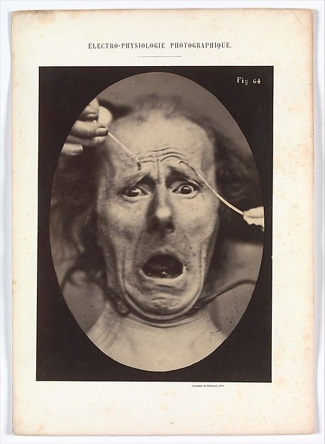 Adrien Tournachon (French, 1825–1903) & Guillaume-Benjamin-Armand Duchenne de Boulogne (French, 1806–1875), Electro–Physiologie, Figure 64, 1854–56, printed 1862