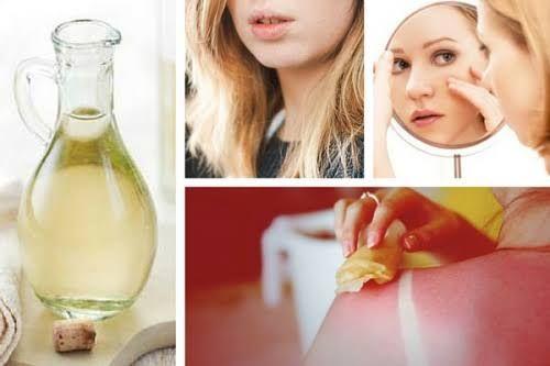 Los usos del vinagre blanco son tantos que se va ha convertir como un elemento imprescindible para limpieza del hogar.¡Descúbrelo!