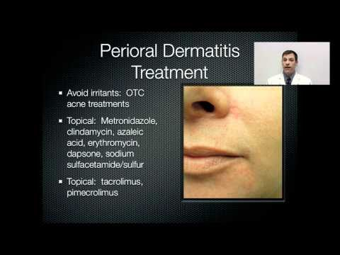 Best Natural Cure For Perioral Dermatitis