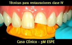 Caso Clínico: Técnicas para restauraciones clase IV y fracturas dentarias - 3M ESPE | Odonto-TV