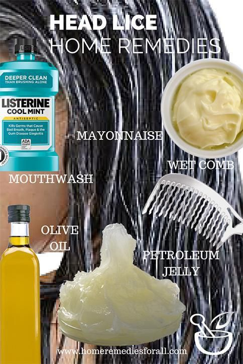 Picture of Home Remedies for Head Lice