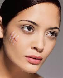 Como curar cicatrices. ¿Quién no tiene una cicatriz? #cicatrices