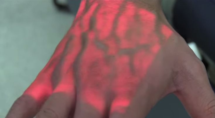 New Technology Shows Nurses Where Your Veins Are [The Future of Medicine: http://futuristicnews.com/tag/future-medicine/]