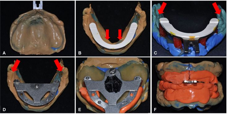 Complete denture fabricated by Jiro Abe's method for edentulous patient with severe alveolar ridge resorption: a case report. Full text of article available online at journal.kap.or.kr Published in Journal of Korean Academy of Prosthodontics 2014 Oct;52(4):338-345