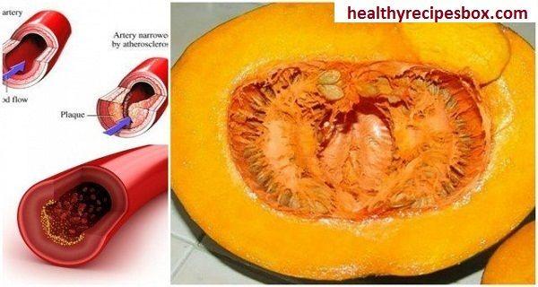Goodbye Cholesterol, Blood Glucose, Lipids And Triglycerides
