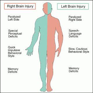 Stroke | THE MALAYSIAN : Mini-stroke Warns That Major Stroke Is Near