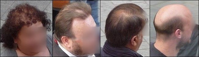 Androgenetic Alopecia: Big Problems with the Current Theory! :http://www.besthairgrowthshampoos.com/androgenetic-alopecia-big-problems-with-the-current-theory/